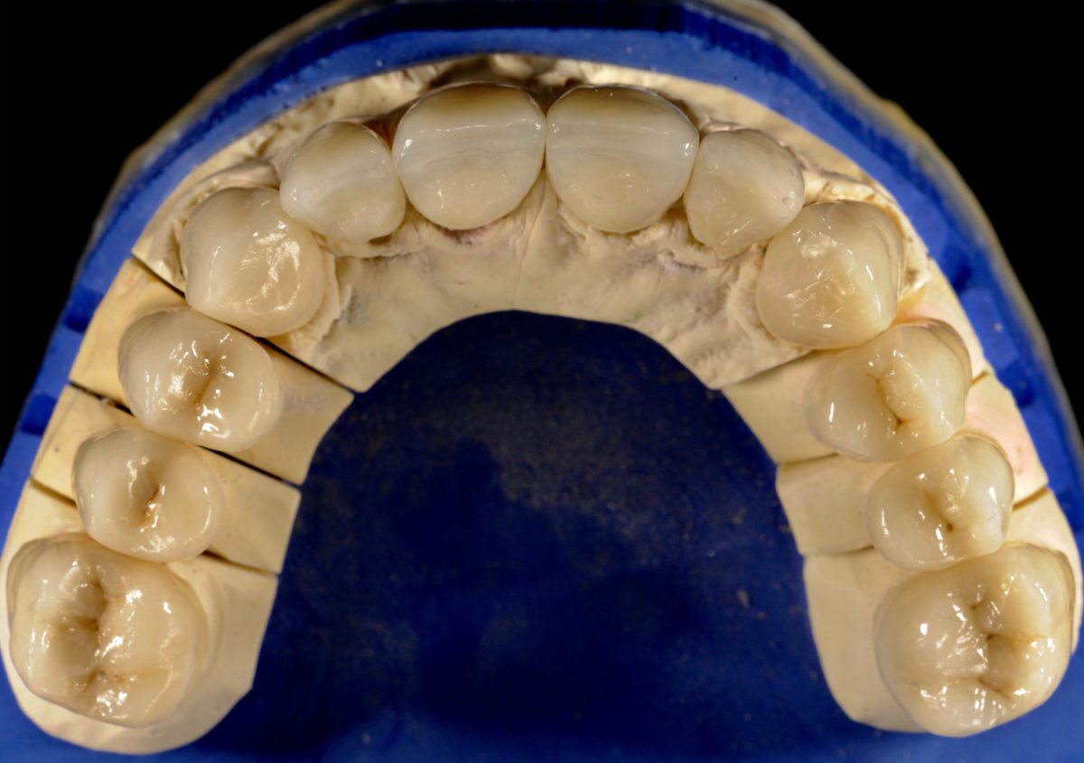 rekonstrukcje zębów